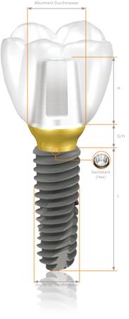 Имплантаты системы TS Osstem Implant
