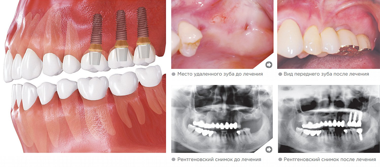 Верхние жевательные зубы (моляры)