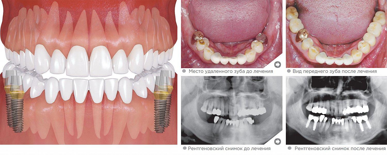 Нижние жевательные зубы (моляры)