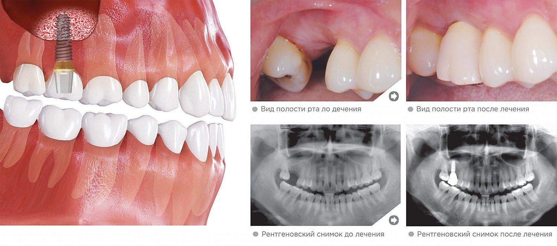 Необходимость внесения небольшого количества костного материала в верхнечелюстную пазуху
