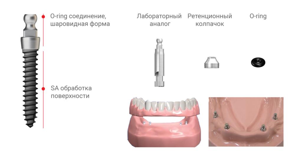 MS имплантат для съемного протеза