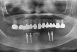 Имплантация с MS через 7 месяцев