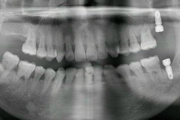 Применение набора CAS KIT на нижней челюсти